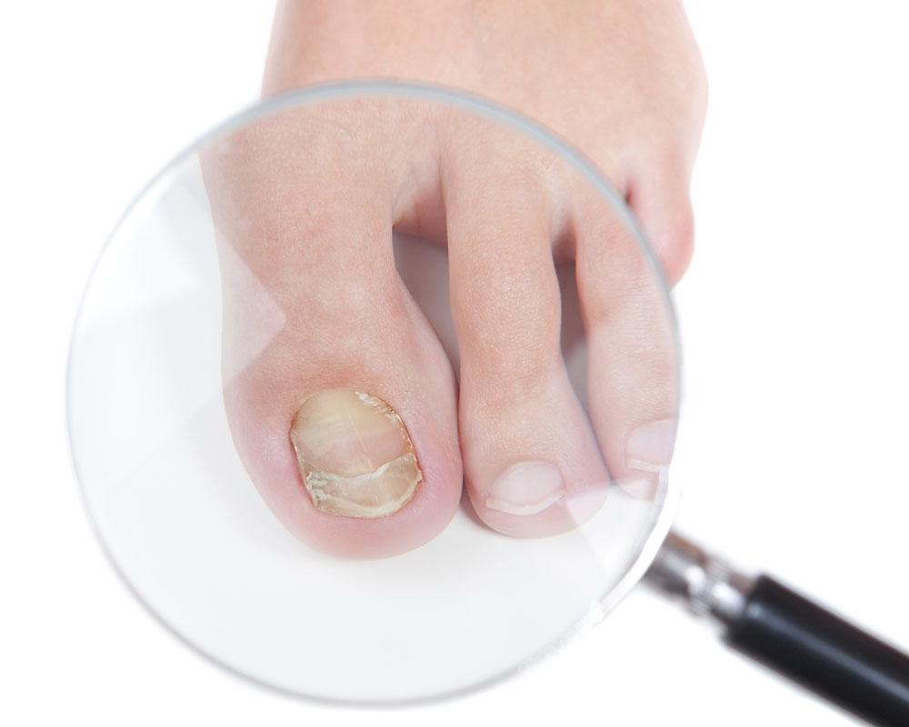 seenhaiguste ravi